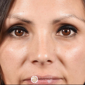 rinoplastia natural en concepcion